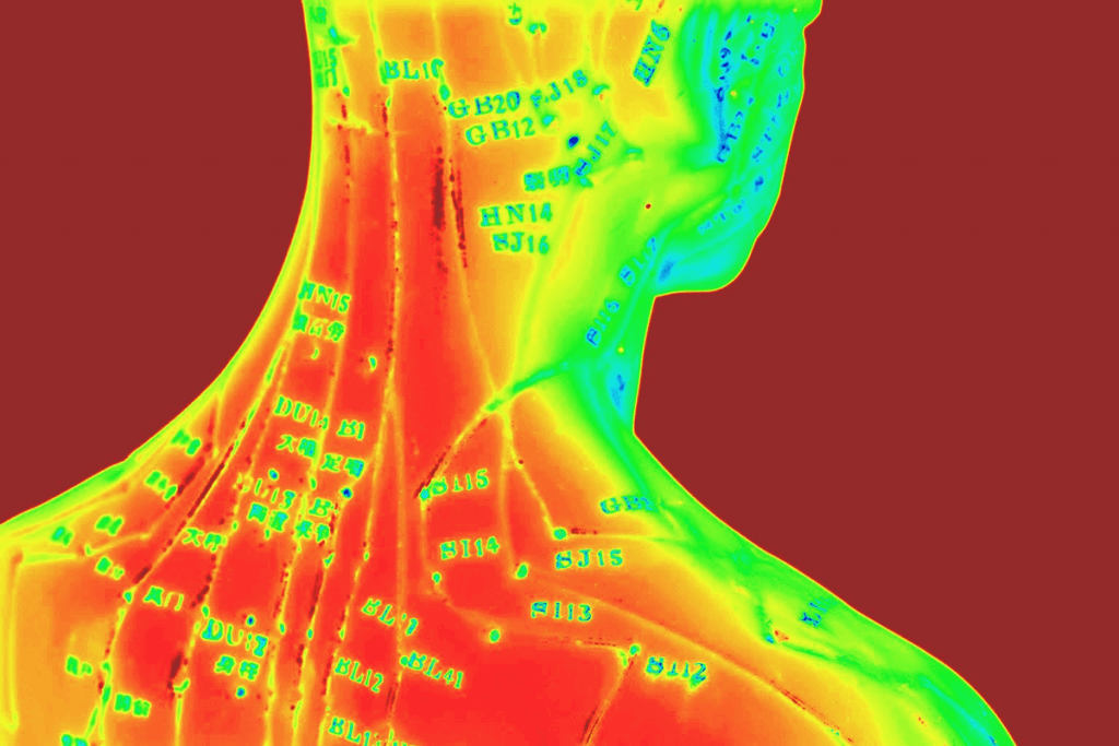 Thermal image of acupuncture points