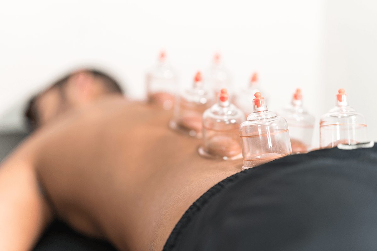 Image of Cupping during Acupuncture Session