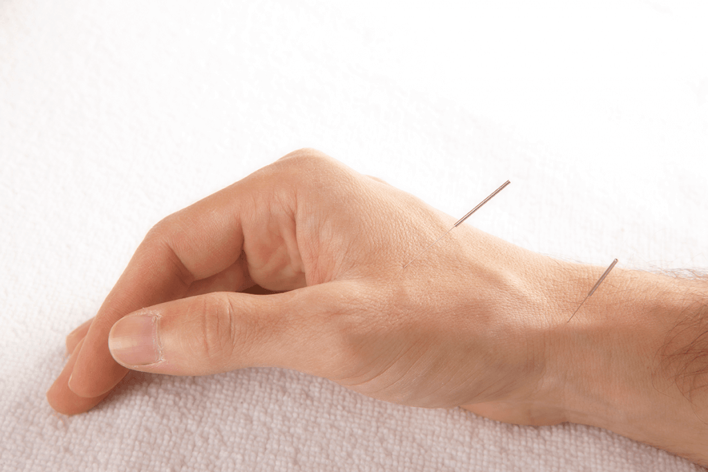 Hand with two acupuncture needles can acupuncture help me?