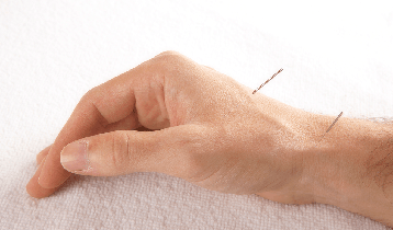 Hand with two acupuncture needles in