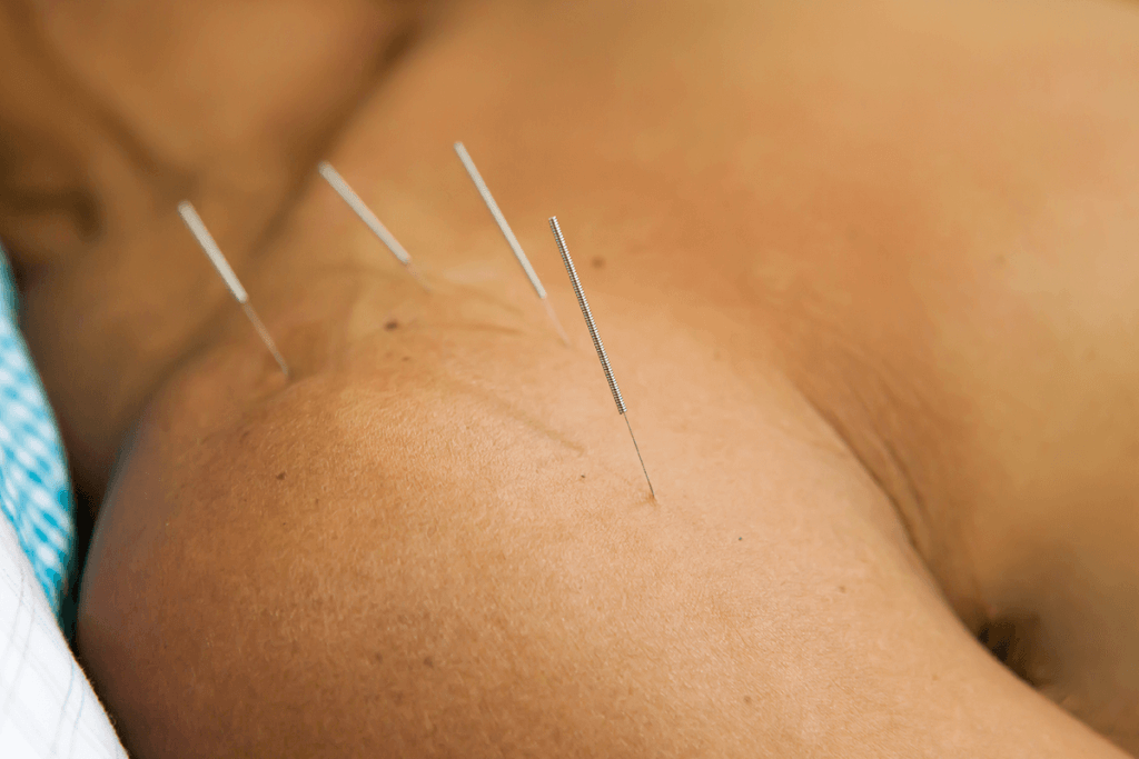 Acupuncture patient with needles in shoulder to treat shoulder pain